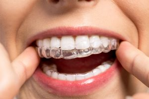 adult teeth treatment