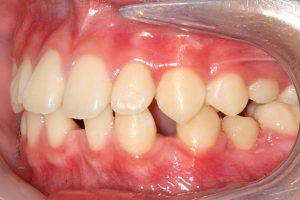 spacing teeth
